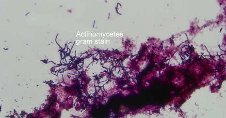 Acinomycetes gram stain