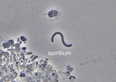 Spirillium
